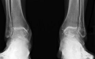 Симптомы и лечение посттравматического артроза голеностопного сустава