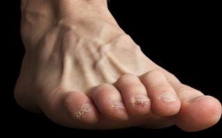 Симптомы и лечение молоткообразной деформации пальцев стопы