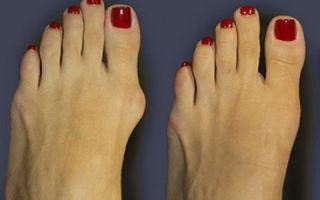 Как проводится удаление шишек на ногах
