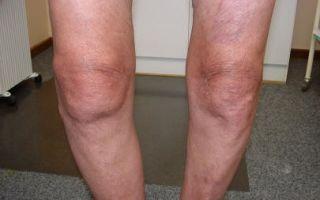 Лечение и последствия реактивного артрита голеностопного сустава