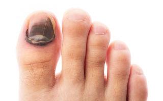 Как проводится комплексное лечение грибка ногтей на ногах