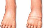 Самые эффективные мочегонные травы при отеках ног