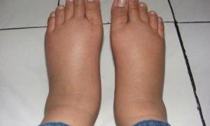 Как быстро снять отек ног в домашних условиях