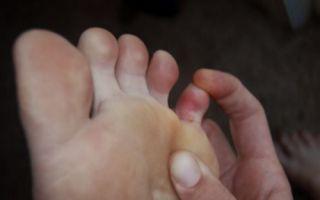Почему болит мизинец на ноге