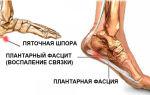 Что делать, если болит пятка при наступании на ногу и ломит, но это не шпора