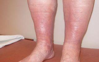 Что делать, если отекает правая нога от колена до стопы