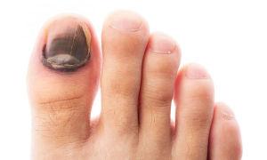 Какие существуют виды грибка на ногах и лечение
