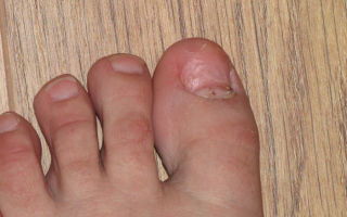 Что делать, если отвалился ноготь на ноге
