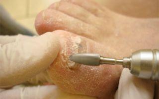 Как проводится удаление ногтя на ноге при грибке