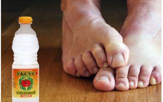 Как можно использовать уксус от грибка ногтей