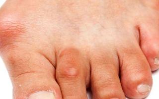 Симптомы подагры на ногах у женщин и лечение