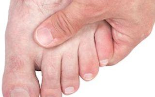 Сколько времени заживает перелом мизинца на ноге