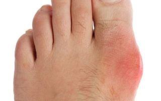 Каким должно быть лечение подагрического артрита