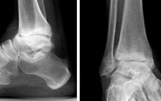 Симптомы и лечение деформирующего артроза голеностопного сустава