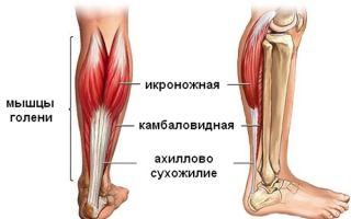 Почему болит ахиллово сухожилие при ходьбе и лечение