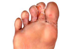 Недорогие, но эффективные препараты для лечения грибка между пальцев ног