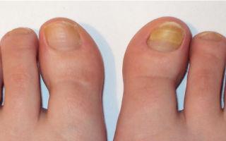 Как передается грибок ногтей на ногах