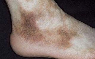 Как лечить, если появились коричневые пятна на ступнях