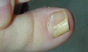 Как правильно отличить псориаз или грибок ногтей