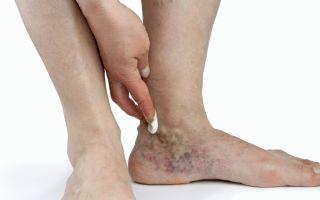 Почему болит ступня посередине при ходьбе и как лечить