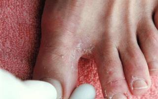Как правильно определить грибок на ногах
