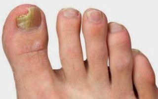 Как и чем лечить грибок на большом пальце ноги