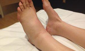 Почему отекают ноги внизу стопы и голень