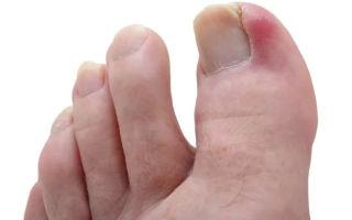 Каким должно быть лечение панариция на пальце ноги