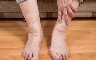 Почему отекают ноги у мужчин и лечение