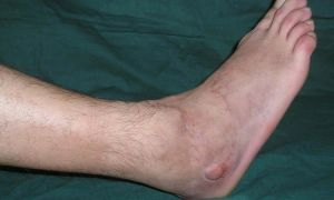 Как и чем лечится воспаление надкостницы голени