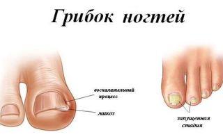 Какие препараты можно выбрать для лечения грибка ногтей