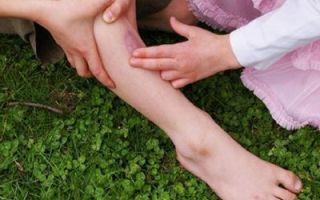 Что делать, если опухла нога и ушиб голени