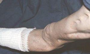 Симптомы и лечение остеомиелита кости ноги