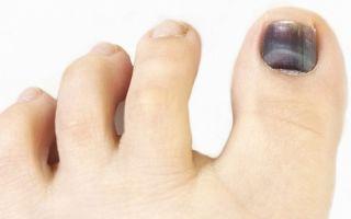 Что делать, если посинел ноготь на большом пальце ноги