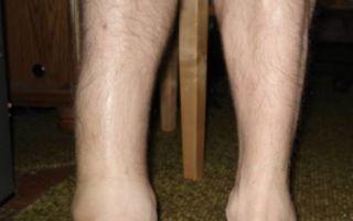 Сколько срастается перелом голеностопного сустава