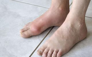 Симптомы и лечение ревматоидного артрита голеностопного сустава
