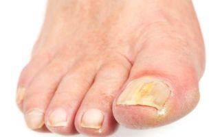 Какие есть народные средства против грибка ногтей на ногах