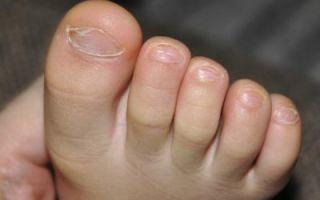 Как и чем лечить грибок на ногах у детей
