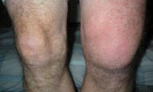 Что делать, если колено опухло и болит при сгибании