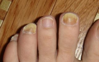 Грибок ногтя фото в начале
