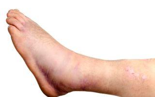 Как лечить, если отекли ноги после кесарева сечения
