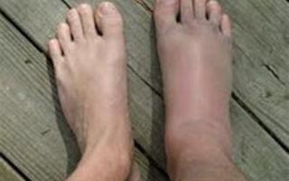 Чем можно заменить препарат «Амлодипин», если отекают ноги