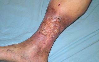 Как и чем лечится трофическая язва на ноге