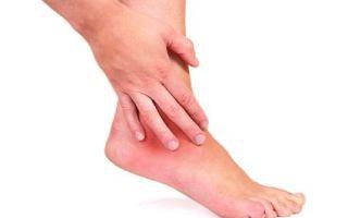 Симптомы и лечение остеоартроза голеностопного сустава