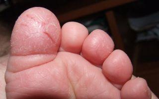 Почему трескается кожа на пальцах ног