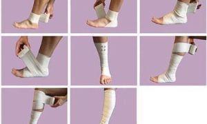 Как наложить и зафиксировать эластичный бинт на голеностопный сустав