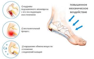 Почему болит пятка на правой ноге