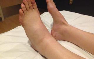 Какие причины и лечение отека ноги ниже колена
