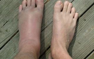Симптомы и лечение воспаления связок стопы