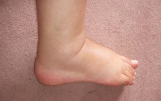 Как и чем лечить отек ноги в щиколотке